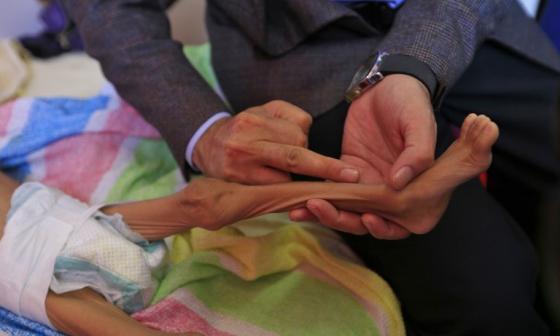 Un médico sostiene la pierna de un niño yemení que sufre de desnutrición.