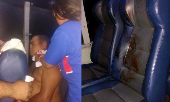 Atraco a bus que iba a Sabanalarga deja un herido a bala