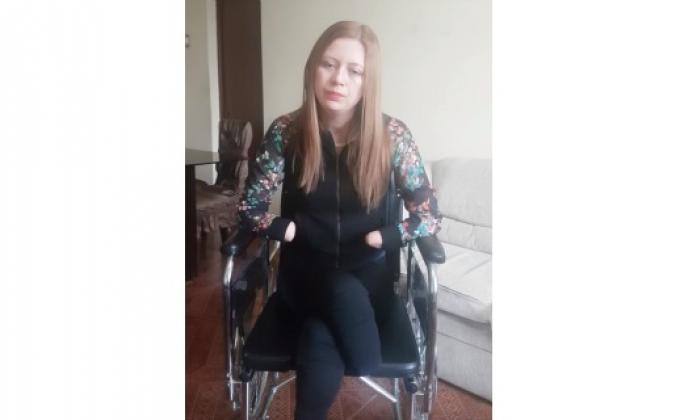Escándalo en Perú por joven que entró a hospital con cálculos renales y salió sin manos ni pies