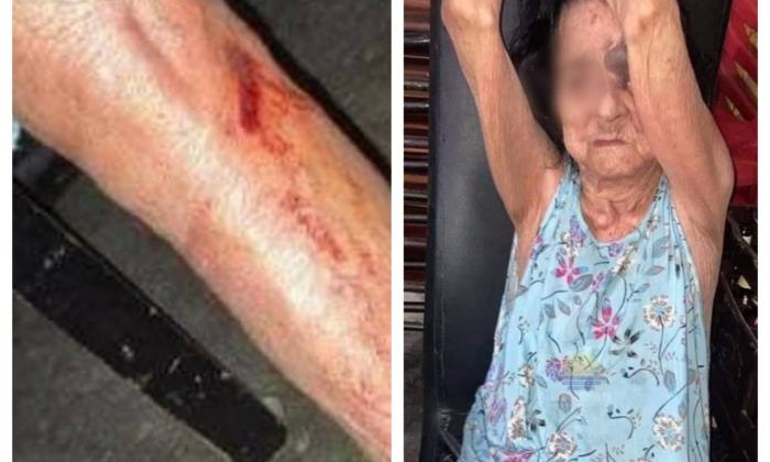 Adulta mayor fue agredida en repetidas ocasiones en Santa Marta