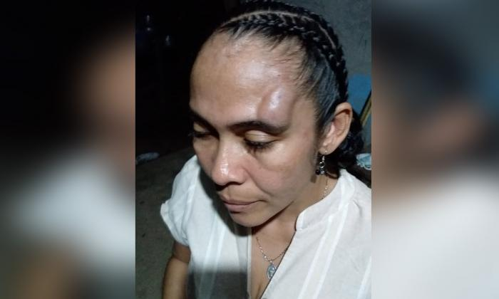 Policía habría golpeado a una mujer en Tierralta, Córdoba