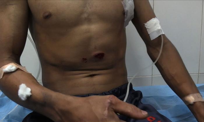 El dolor de los venezolanos heridos en las protestas fronterizas