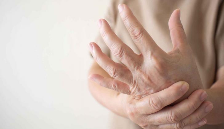 La enfermedad del Lupus afecta a unos cinco millones de personas al rededor del mundo.