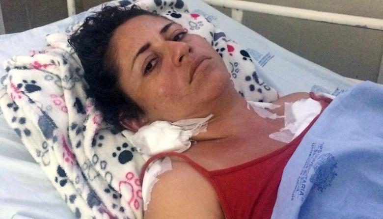"""""""Me tiró a matar porque no quería vivir con él"""": Deneris Payares"""