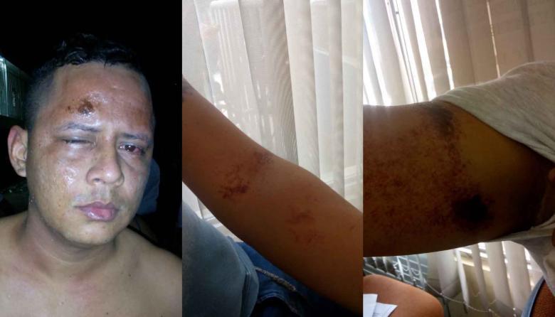 Hombre denuncia que una mujer lo quemó con ácido
