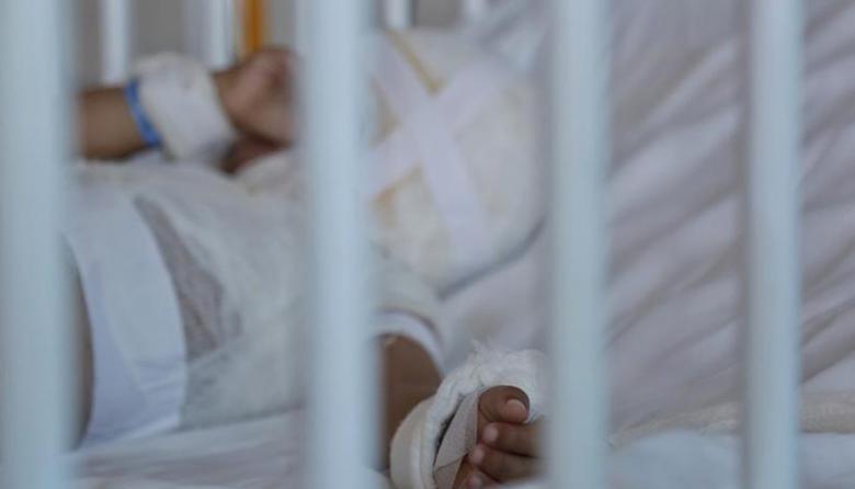 Sancionan a padres de niños quemados con pólvora en el país