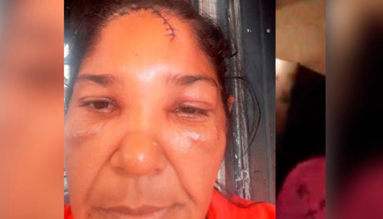 Mujer dice que fue agredida por un policía en Montería
