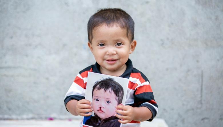''3 Por Un Cambio', iniciativa que transformará la vida de niños con labio fisurado