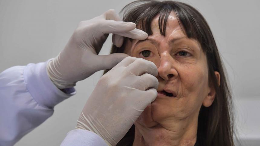 Denise Vicentin, al momento de recibir su prótesis.