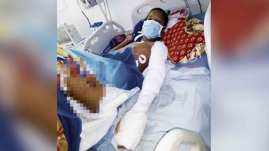 Samir Sandoval sufrió quemaduras de tercer grado.