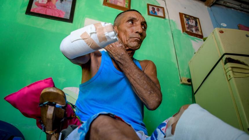 Cercenan la mano a adulto mayor en medio de una riña en Barranquilla