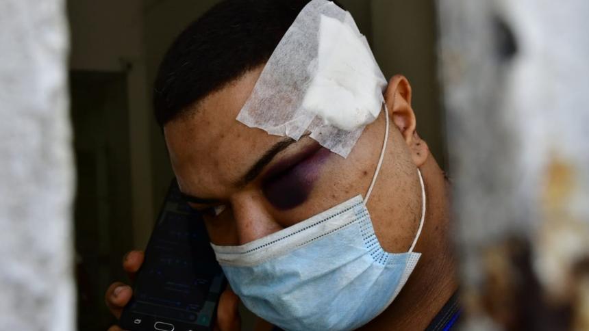 Agredido por Brayner De Alba no tiene cómo pagar la cuenta de la clínica