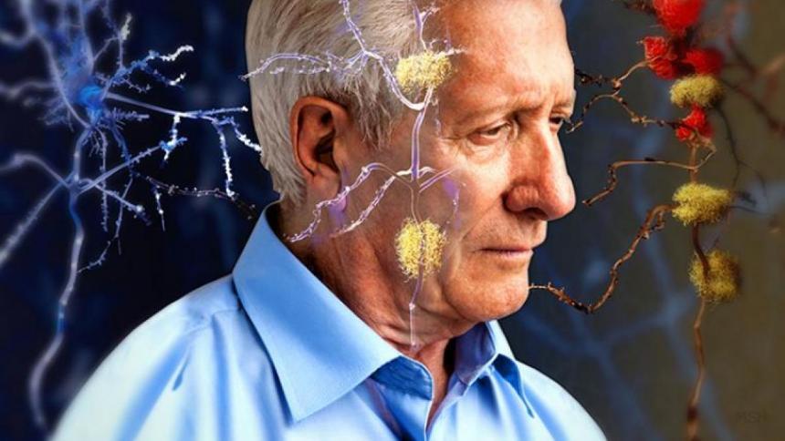 Estados Unidos aprueba una nueva terapia para el alzheimer