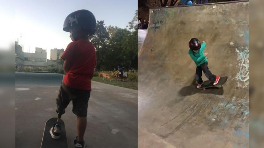Niño skater con prótesis desafía las limitaciones del deporte