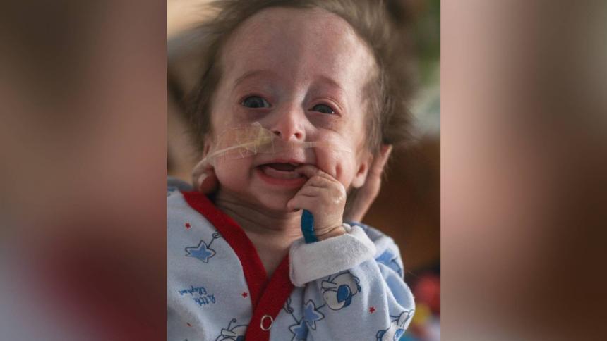 Vito, el bebé que nació con envejecimiento prematuro