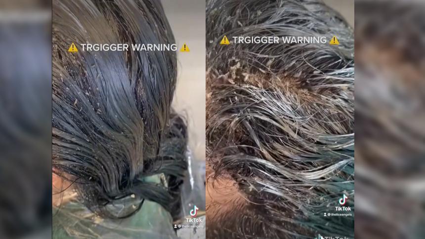 Video de niña con más de 15 mil piojos en su cabeza se hace viral