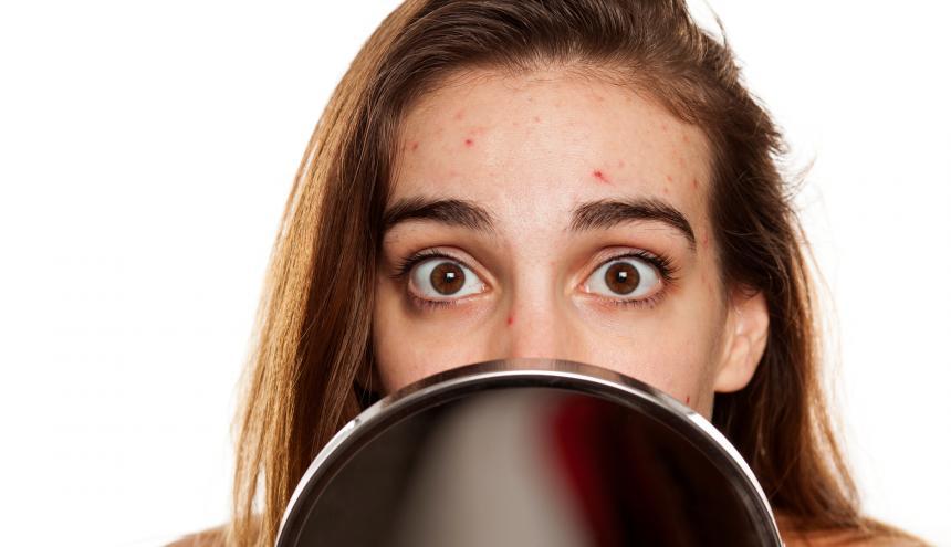 Este tipo de dermatitis se localiza en la zona central de la cara y el tórax, dicen los especialistas.