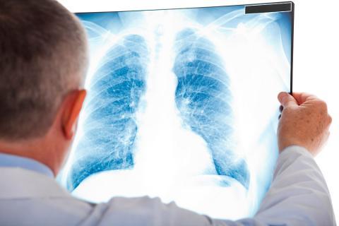 Radiografía de tórax que muestra densidad en el área de los pulmones, característica en la neumonía.