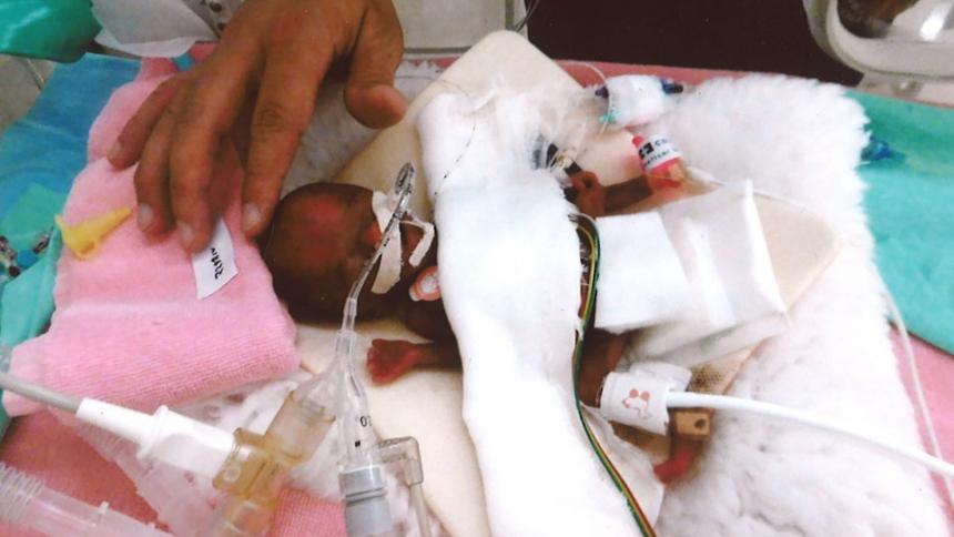 La bebé más pequeña del mundo pesó 245 gramos al nacer — FOTOS