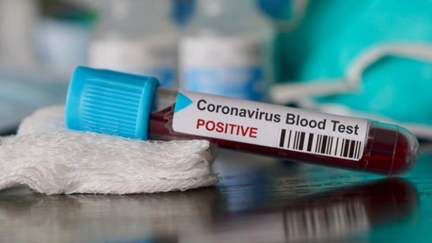 Egipto confirma primer caso de Covid-19 en África | El Heraldo
